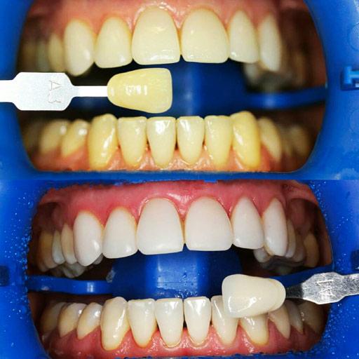 множество отбеливание зубов перекисью фото вити тюрьме